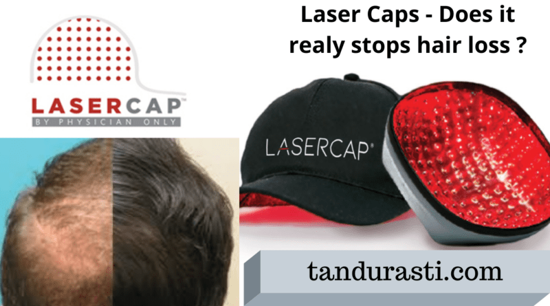Laser caps for baldness