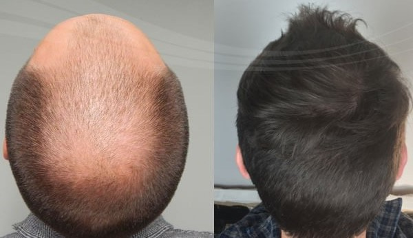 My Hair transplant Journey